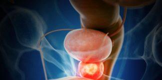 Urología - Próstata