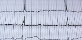 Antiinflamatorios podrían afectar seriamente tu corazón