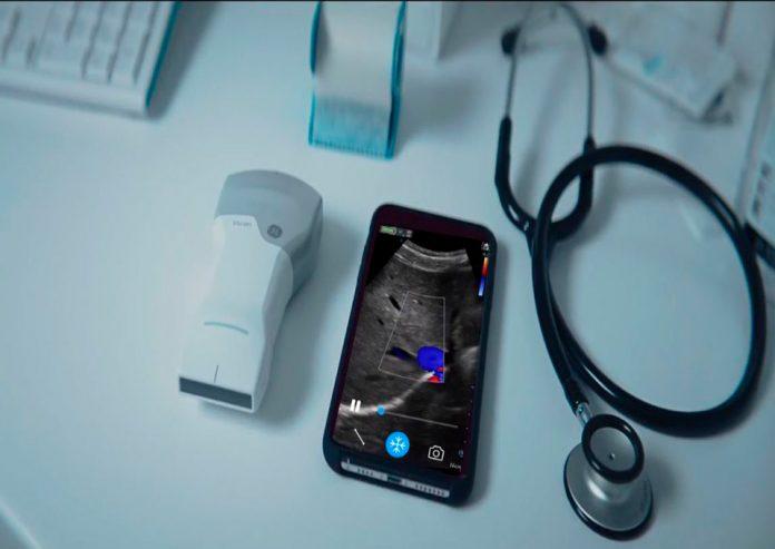 GE Healthcare revoluciona la atención de la salud con nuevo ultrasonido portátil de bolsillo