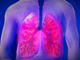 Neumonía causada por Covid-19 puede dejar importantes secuelas respiratorias | Portal Red Salud