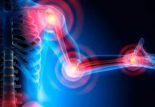 Investigadores de Mayo desarrollan algoritmo para predecir actividad de la artritis reumatoide