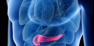 El trasplante de páncreas cura la diabetes explicación de un experto de Mayo Clinic