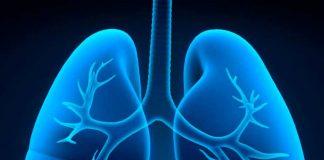 Experto de Mayo Clinic Healthcare ofrece sugerencias para respirar mejor pese a la enfermedad pulmonar obstructiva crónica